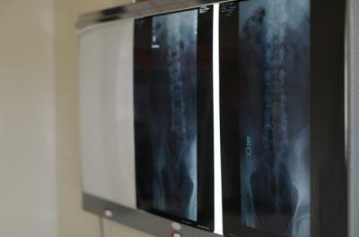 腰のレントゲン写真